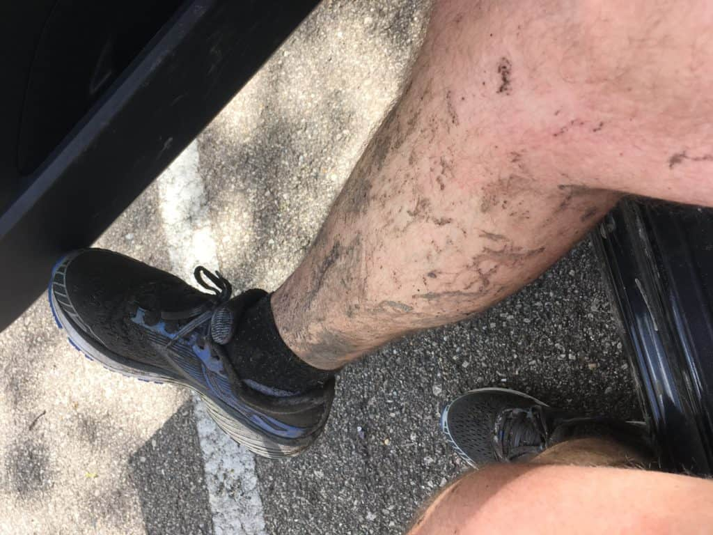 Picture of my legs dirty after going for a run